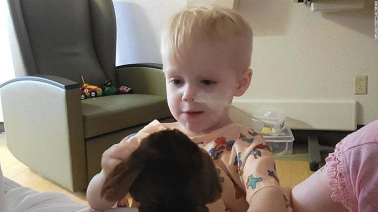 A 2-year-old from Florida is hospitalized after complications from swallowing 16 magnetic balls